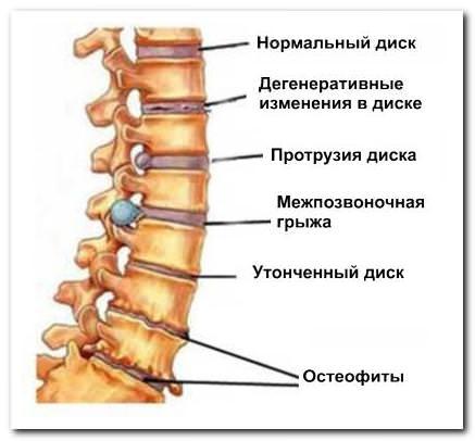 Остеохондроз шейно грудного отдела