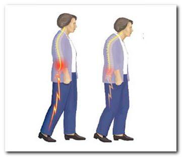 симптомы позвоночного стеноза