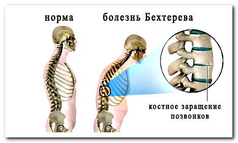 боль в спине лежа и болезнь бехтерева