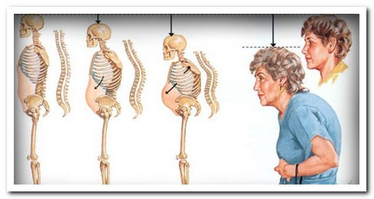 симптомы остеопороза грудного и поясничного отдела