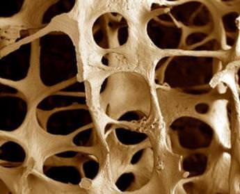 Остеопороз позвоночника с компрессией грудного отдела позвоночника