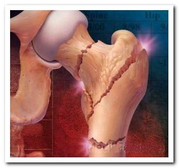 Обезболивающие при остеопорозе