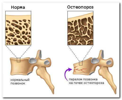 симптомы и признаки остеопороза