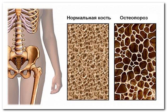 Диффузный остеопороз: особенности болезни, симптомы и лечение