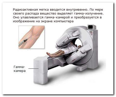 Сканирование костей обследование