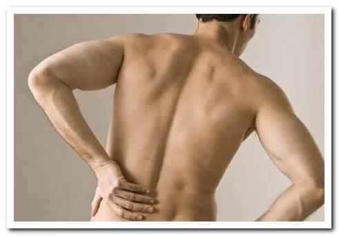 причины остеофитов позвоночника