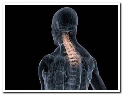 Рак костного мозга симптомы