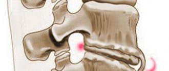 Симптомы и лечение спондилеза