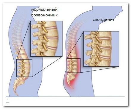 Дорсопатия грудного отдела