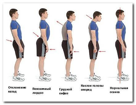 симптомы подросткового остеохондроза