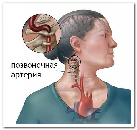 симптомы дорсопатии шейного отдела