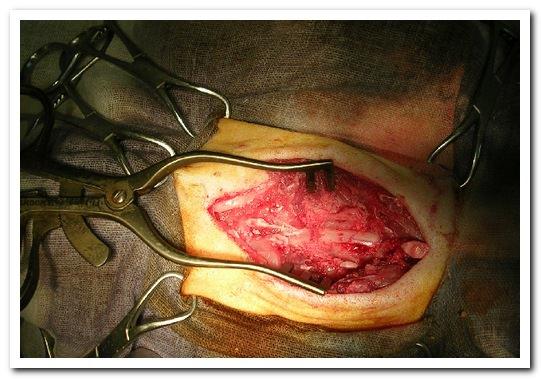 Компрессия спинного мозга в шейном отделе