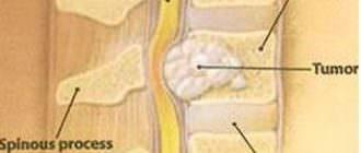 как лечить компрессию спинного мозга
