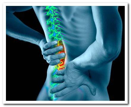 Корешковый синдром поясничного отдела симптомы лечение