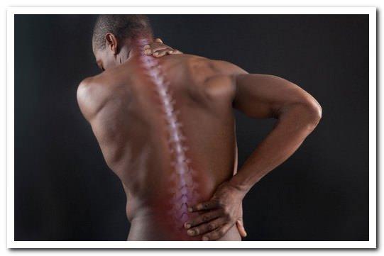 Миофасциальный болевой