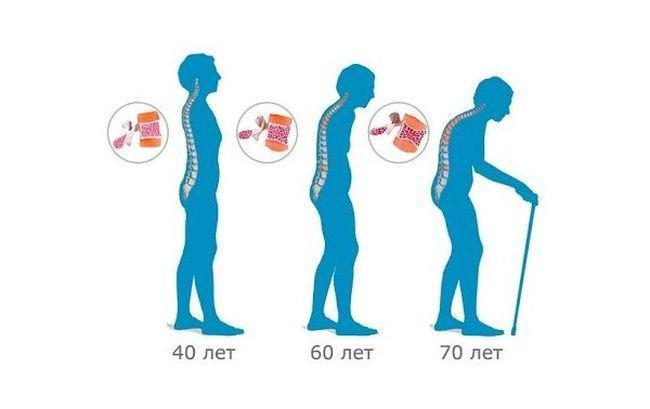 Компрессионный перелом грудного отдела позвоночника при остеопорозе: как передается, первые признаки, питание, разновидности болезни
