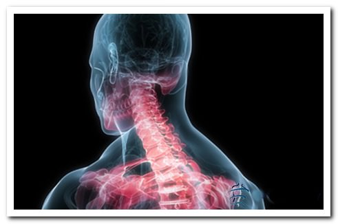 симптомы цервикалгии