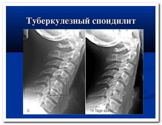Радиологическое лечение тубереулеза позвоночника