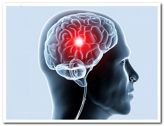 Упражнения при ишемии мозга
