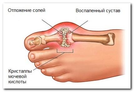 Подагра – заболевание, связанное с отложением в суставах солей мочевой кислоты (уратов).