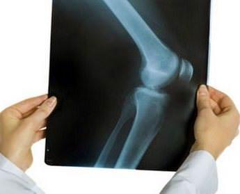 Артроз коленного сустава – причины, симптомы, 1, 2, 3 степень и лечение деформирующего артроза коленного сустава