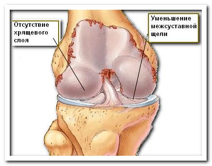 МРТ диагностика гонартроза