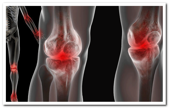 simptomi_i_priznaki_artroza