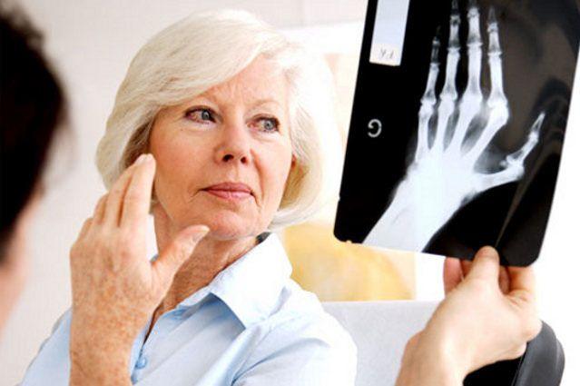 Лечение ревматоидного артрита народными средствами.