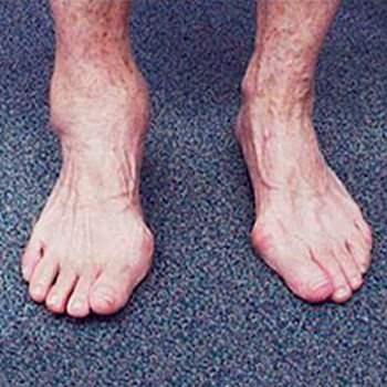 Что представляет собой артроз 1 степени голеностопного сустава