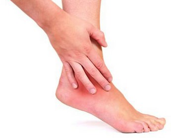 Артроз голеностопного сустава - причины, симптомы, диагностика и лечение