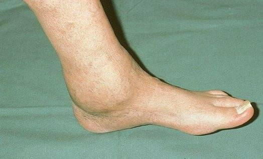 Посттравматический артроз лечение голеностопный сустав применение прибора витафон при лечении коленного сустава