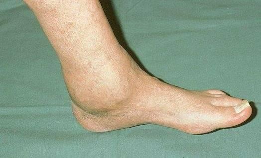 Артроз голеностопного сустава признаки лечение остеоартроз тазобедренного сустава 1 степени как лечить
