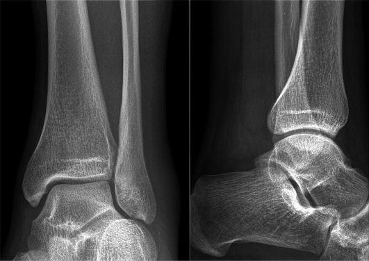 Артроз голеностопного сустава симптомы лечение