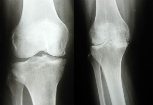 Артроз локтевого сустава рентген признаки