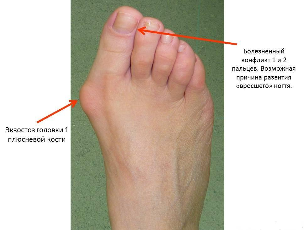Артроз среднего пальца ноги лечение