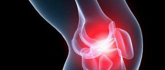 степени и лечение деформирующего артроза