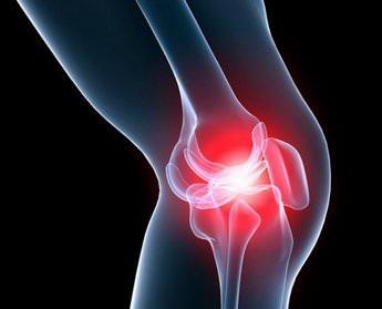 Деформирующий артроз коленного сустава лечение 2 степени