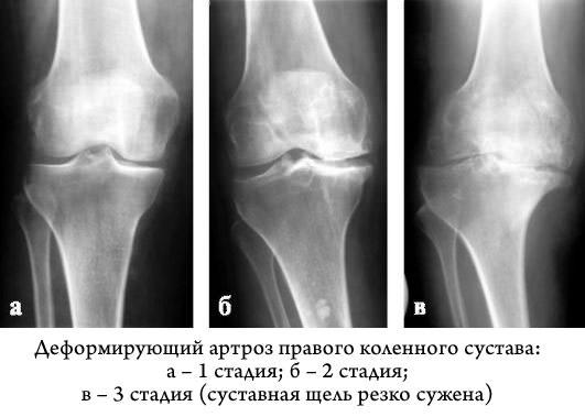 Деформирующий артроз локтевого сустава 2 степени что делать если разрушается тазобедренный сустав