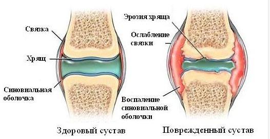 Артроз стопы симптомы и лечение фото