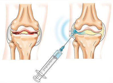Снятие боли при артрозе коленного сустава