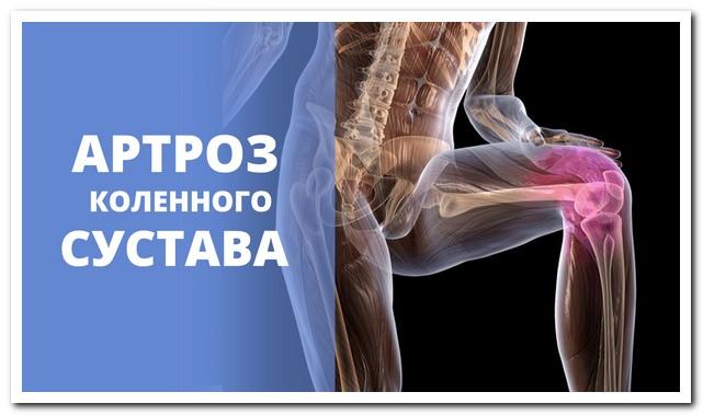 Как вылечить артроз коленного сустава средствами народной медицины