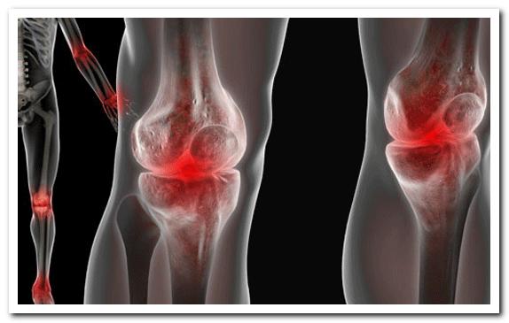 Болевые симптомы при артрозе коленного сустава