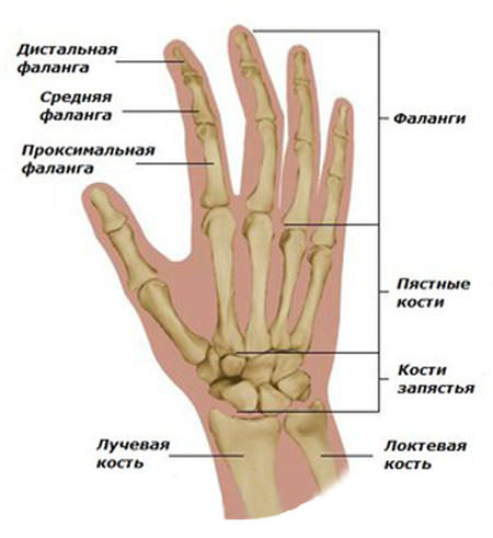 Лечение артоза кистей руки
