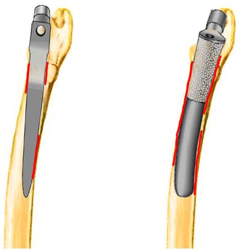 анатомическая ножка
