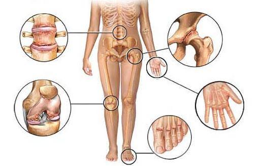 виды и причины артрита