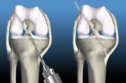артроскопия при травме коленных связок
