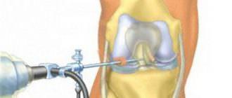 Артроскопия коленного сустава: виды, отзывы