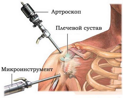 Ортроскопия на плечо реабилитация