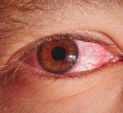 последствия реактивного артрита