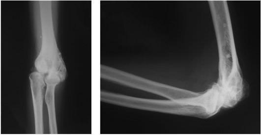 диагностика локтевого сустава